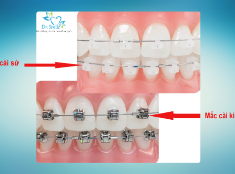 Răng lệch lạc và chỉnh nha mắc cài