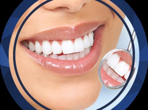 Răng sứ – Răng sứ thẩm mỹ
