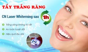 Làm-trắng-răng