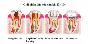 điều trị tuỷ răng - nội nha