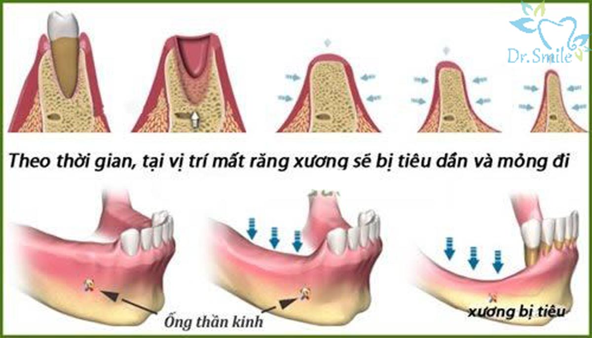 tiêu xương do mất răng lâu ngày