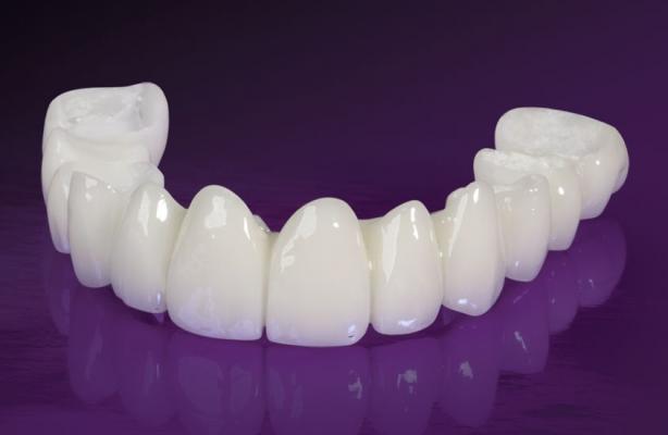 Bọc răng hàm bị sâu giá bao nhiêu?