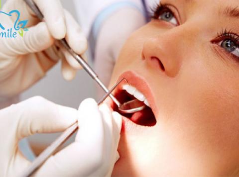 Điều trị cao răng và bệnh liên quan