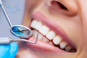 """Xu hướng phát triển """"Dental tourism"""" – Cơ hội và Thách thức"""