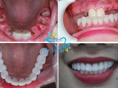 Cấy ghép răng – Implant