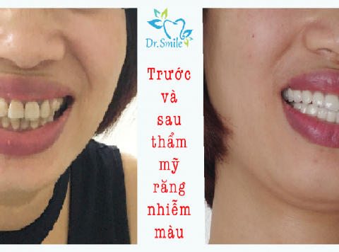 Răng bị nhiễm Tetracycline – Nỗi ám ảnh của thế hệ 7X