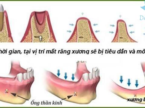 Tiêu xương và cấy ghép xương ổ răng